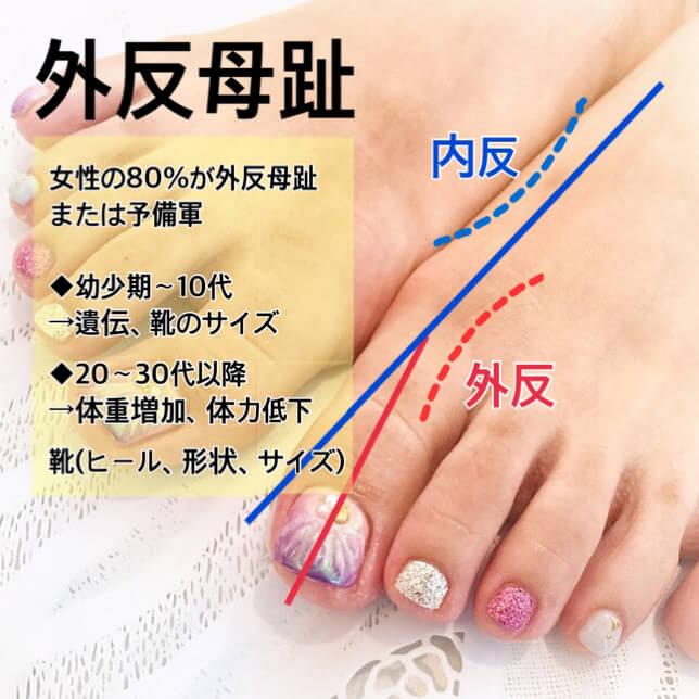 上野で美脚のための脚の姿勢改善