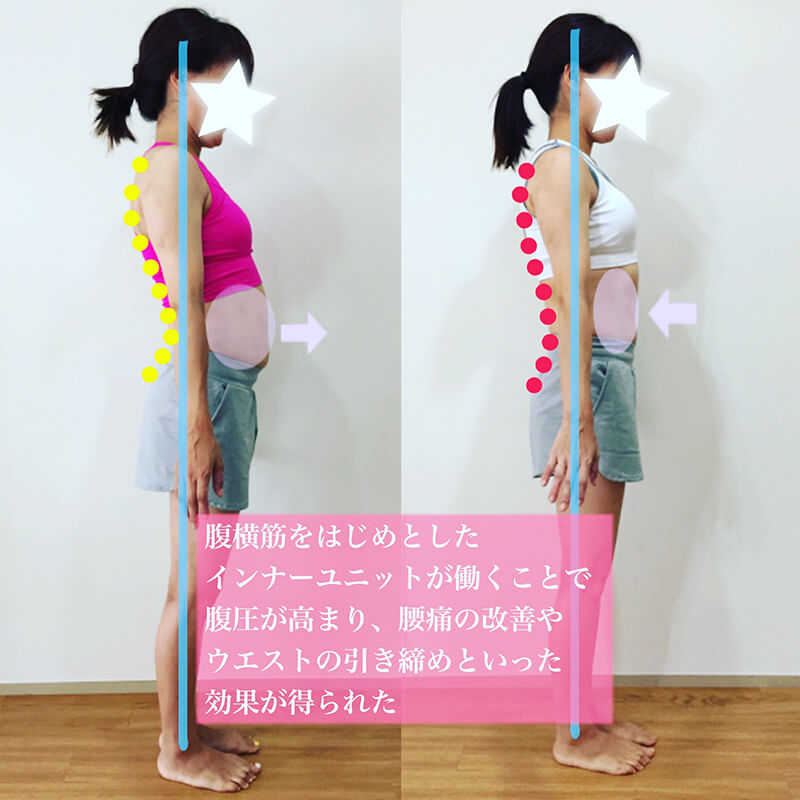 上野で産後の骨盤矯正のためのトレーニング